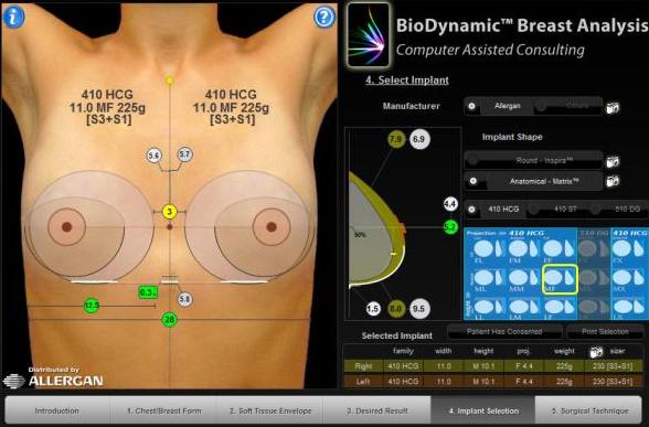 Бесплатное моделирование груди