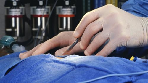 Липосакция - пластическая операция 2011 года