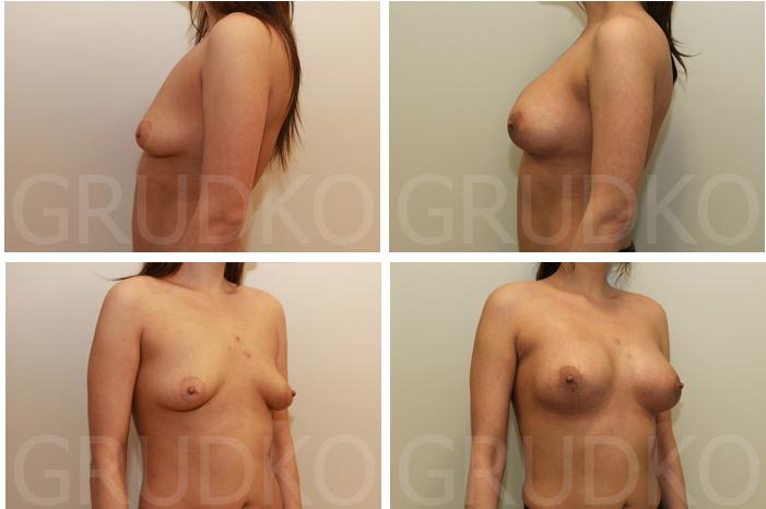 Упражнения для увеличения груди за 2 недели