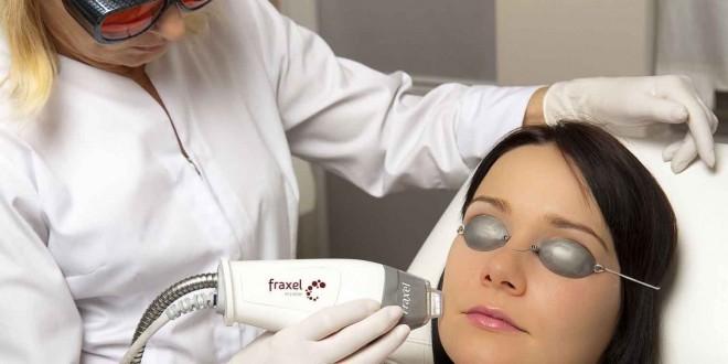 Лазерная косметология корректирует внешность