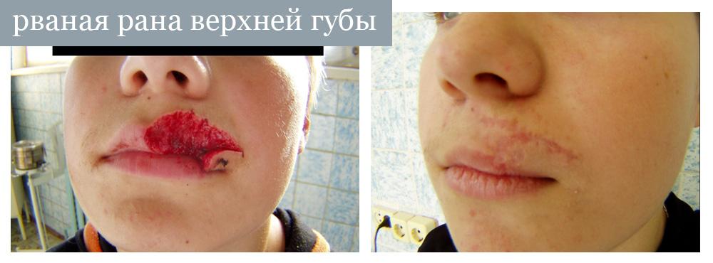 Как зашить рваную рану на губе